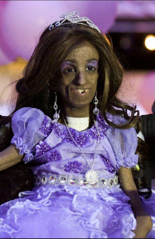 Magali González Sierra, una niña con progeria que celebra su 15 cumpleaños